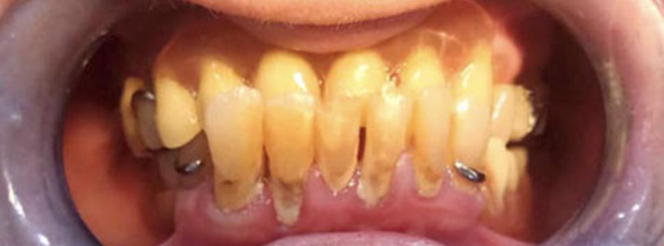 Before-Pacient 32 Dents